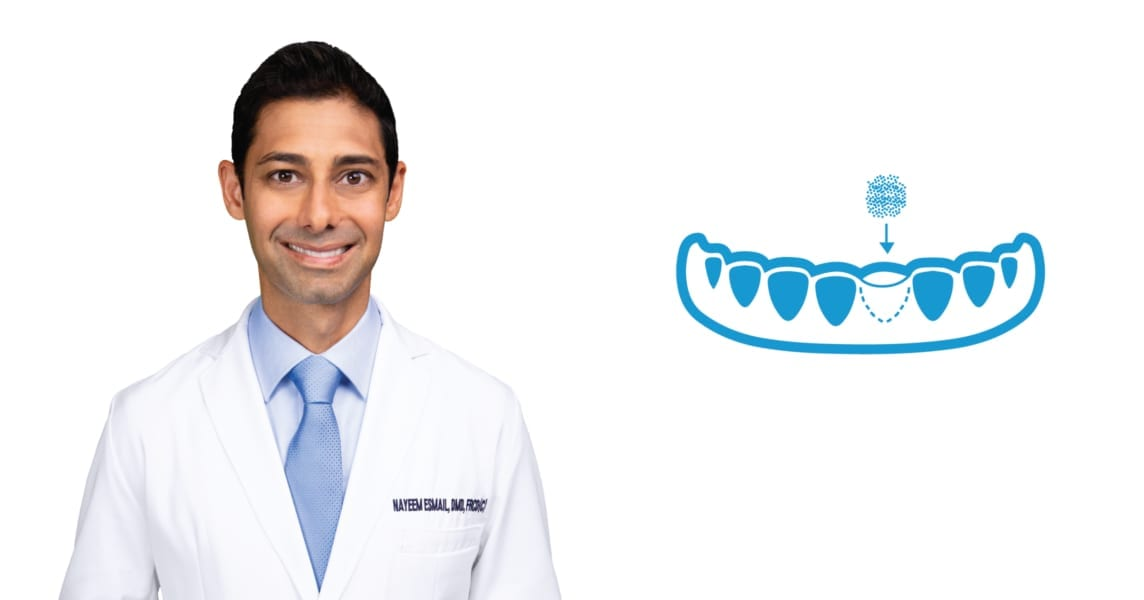 What is bone grafting in Abbotsford, BC?